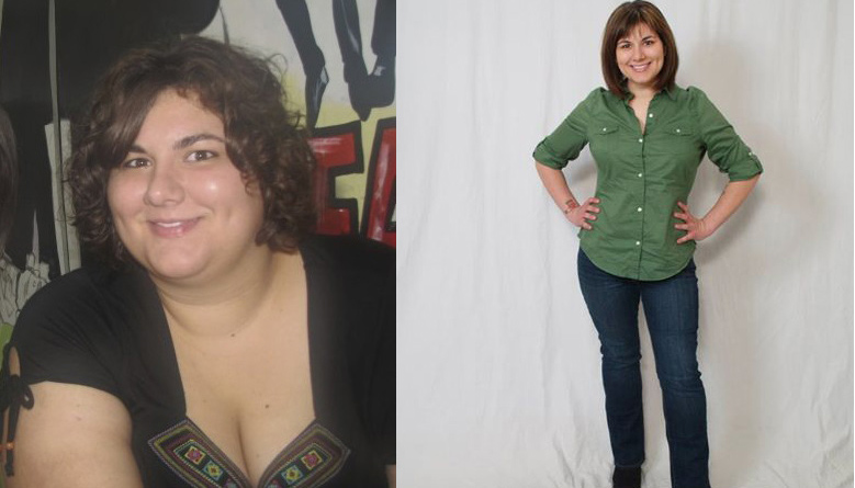 Jenna before and after gastric bypass.