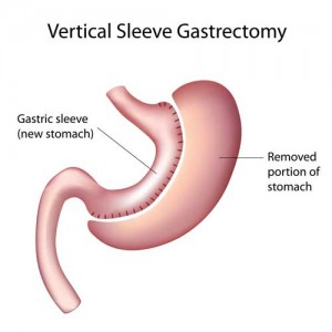 Gastric sleeve procedure details.